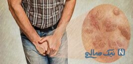هشدار مهم به همسران! زگیل جنسی
