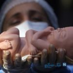 نکته هایی برای پیشگیری از بروز سقط جنین !