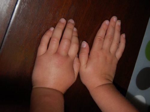 ورم دست و پای خانم های باردار