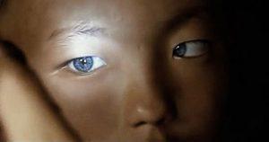 پسر بچه چینی با چشمان آبی روشن و حیرت پزشکان!+عکس