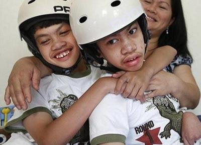 جشن دهمین سالگرد جدایی دوقلوهای بهم چسبیده فیلیپینی! +عکس