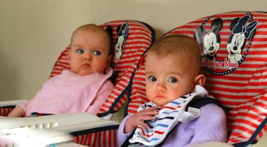 دختران دوقلو با فاصله زمانی ۸۷ روز