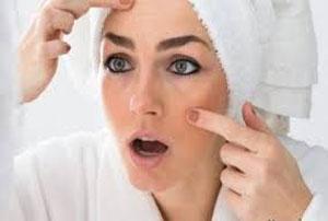 برای جلوگیری از تیرگی پوست در زمان حاملگی چه می توان کرد؟!
