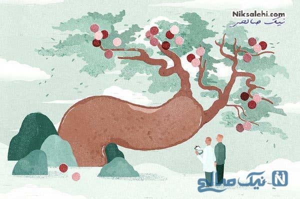 روش تشخیص بیماری پیرونی یا انحنای آلت تناسلی