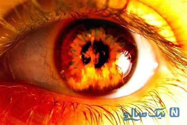 درمان چشم چرانی شوهر