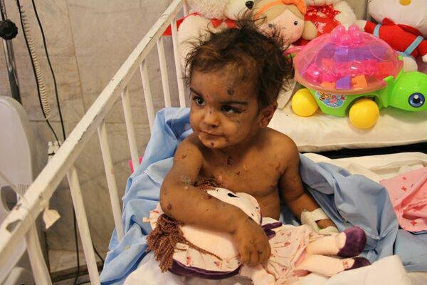 سایه مادر شیشه ای بر سر کودک سه ساله رفسنجانی / بوسه های آتشین بر پیکر ستایش بی گناه + تصاویر