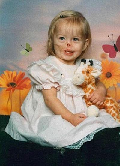 تحقق رویای دختر بچه برای داشتن گوش + تصاویر
