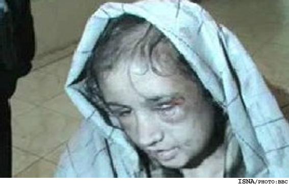 شکنجه وحشتناک نوعروس نوجوان ۱۶ ساله /عکس
