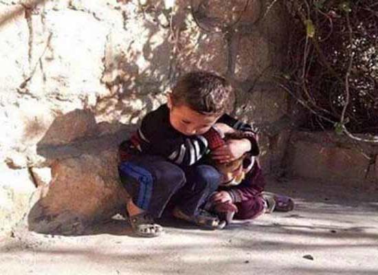 کودکی که سپر بلای خواهرش شد + عکس