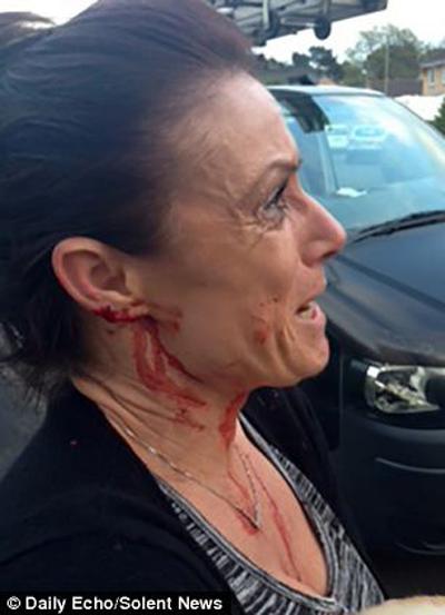 حادثه وحشتناک برای زن جوان در پارک عمومی+تصاویر