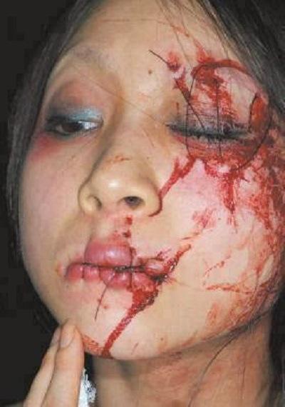 سعودیها لبها و چشم یک کارگر زن خارجی را دوختند + عکس (+۱۸)