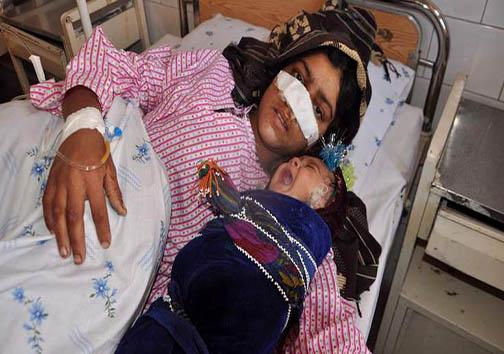 جزییات حادثه فردی که بینی همسرش را برید! + عکس