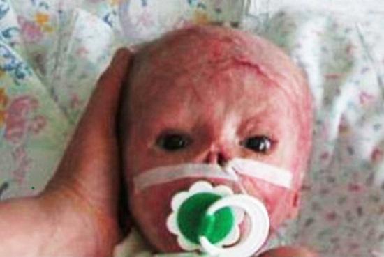 سوختن وحشتناک نوزاد ۳ روزه در دستگاه فتوتراپی بیمارستان + تصاویر