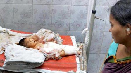 اتفاقی باور نکردنی برای نوزادی در بیمارستان / رئیس بیمارستان از کار بر کنار شد + تصاویر