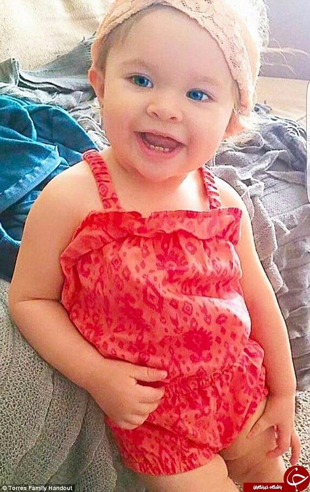 اشتباه پزشکی کودک ۱۴ ماهه را به کشتن داد + تصاویر