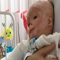 نوزاد تازه متولد شده روی تخت بیمارستان آتش گرفت و دچار سوختگی شد + تصاویر