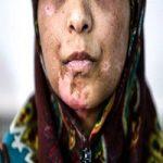 شوهر شکنجه گر اعظم به ۳۰ سال حبس محکوم شد + جزئیات و تصاویر
