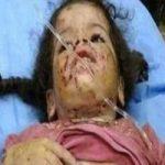 گاز گرفتن وحشیانه 2 دختربچه توسط پدر بی رحم! +تصاویر 16+