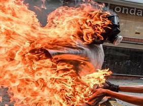 صحنه های بسیار دلخراش از آتش گرفتن پسر جوان +تصاویر(+۱۴)
