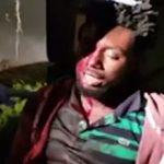 ضرب و شتم تا سرحد مرگ مرد جوان توسط سه زن +تصاویر(18+)