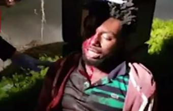 ضرب و شتم تا سرحد مرگ مرد جوان توسط سه زن +تصاویر(۱۸+)