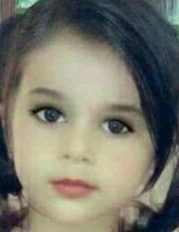 آخرین وضیعت دختر زیبای ۳ ساله که در دیگ نذری افتاد +عکس