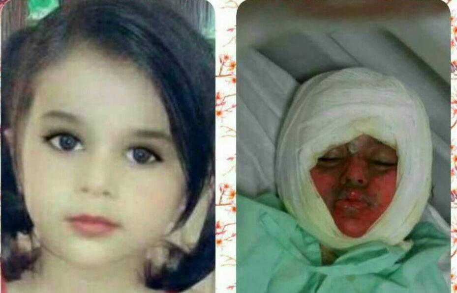 مرگ تلخ دختر بچه 3 ساله آبادانی