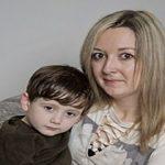 مربی مهد کودک پسربچه دو ساله را با چایی سوزاند! +تصاویر