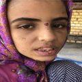اولین گفته های دختر شکنجه دیده ماهشهری از شکنجه های پدر و نامادری +عکس