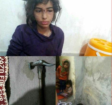 دختر شکنجه دیده ماهشهری