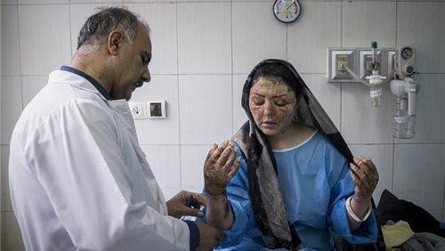 مریم قربانی اسیدپاشی