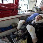 جزئیات آخرین وضعیت درمانی مریم قربانی اسیدپاشی تبریز +تصاویر