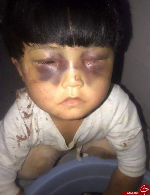 شکنجه وحشیانه دختر خردسال