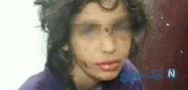 گفتگوی تلخ با مادر فاطمه دختر ماهشهری شکنجه دیده توسط نامادری
