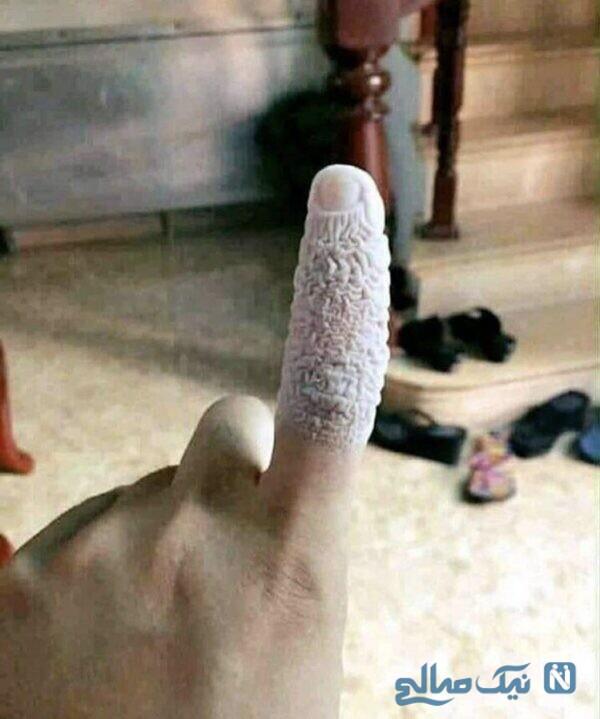 انگشت پترس فداکار