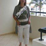 تغییر دیدنی یک خانم پس از ۹۵ کیلو کاهش وزن +عکس