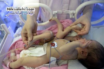 تولد نوزادی با هشت دست و پا! عکس