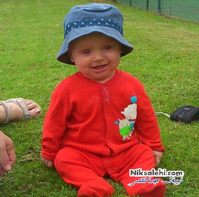 پسربچه ای که قادر به پلک زدن نیست +عکس