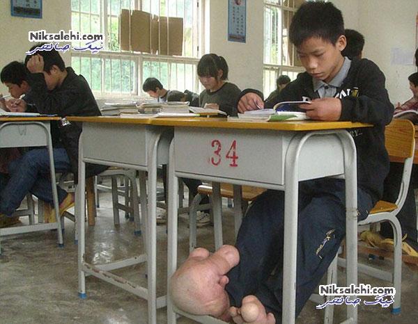 پسر۱۴ ساله با عجیب ترین پاهای دنیا + عکس