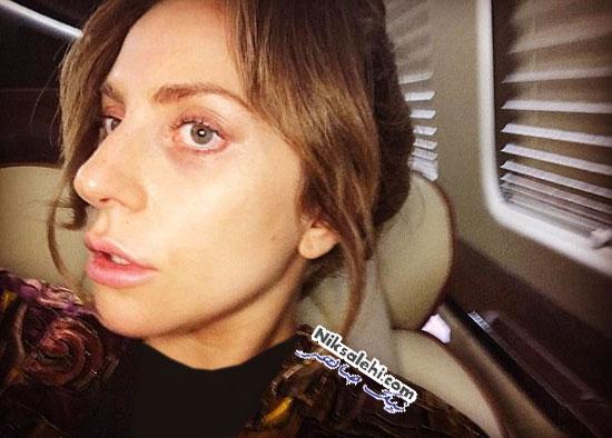 چهره بدون آرایش لیدی گاگا