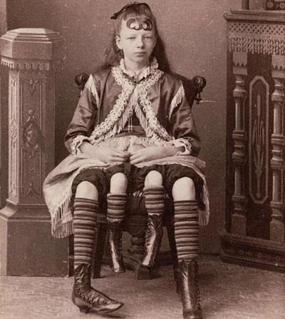عجیب ترین زنان قرن نوزدهم که مردم برای دیدن آنها پول می دادند!