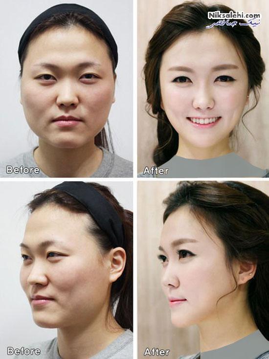 جراحی پلاستیک در کره جنوبی