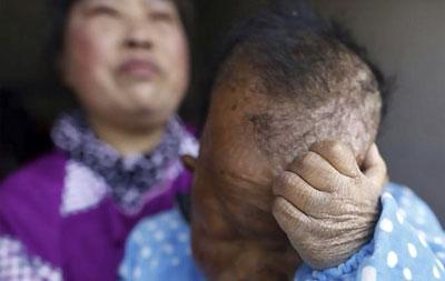 توقف رشد مرد ۳۰ ساله چینی از دو سالگی به دلیل وضعیت ناشناخته!