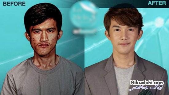 چهره قبل و بعد جراحی پلاستیک