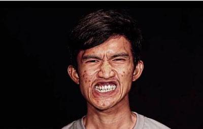 تغییرشکل شوکه کننده جوان تایلندی پس از جراحی پلاستیک!
