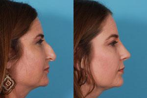 تجربه شوکه کننده زن تایلندی از جراحی بینی در یک کلینیک ارزان قیمت!
