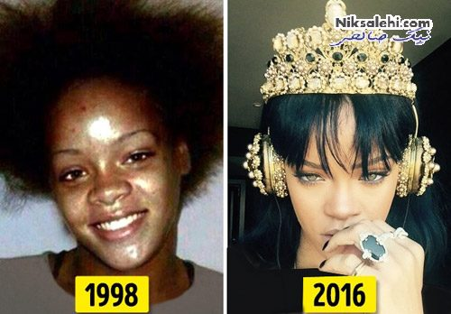 تغییر چهره سلبریتی ها