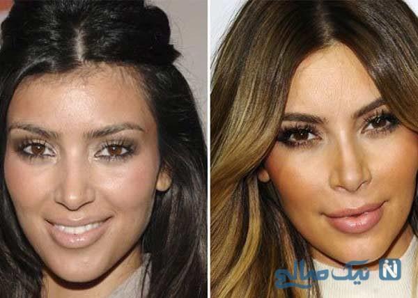تحول شگفت انگیز چهره ی کیم کارداشیان در گذر سال ها
