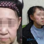 جراحی پلاستیک صورت دختر نوجوان دچار پیری زودرس با نتیجه حیرت انگیز