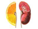 عادت های غذایی که سلامت کلیه را به خطر می اندازد!